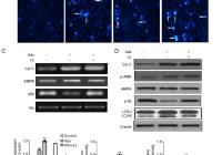 Inhibition Of Autophagy Enhances Er Stress-Mediated pertaining to Er Diagram 101